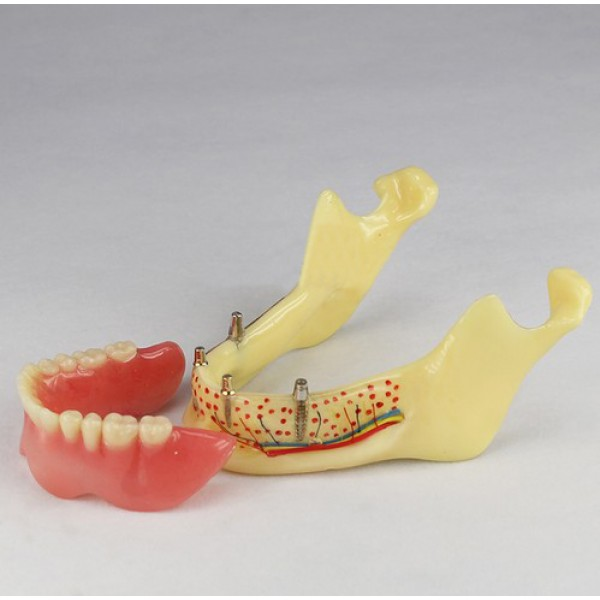 Dental Teeth Implant Model Of Jaw For Study And Teach M-2014b