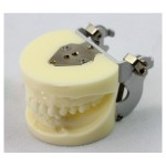 ENOVO Brand Dental Implant Study model with Removable Teeth